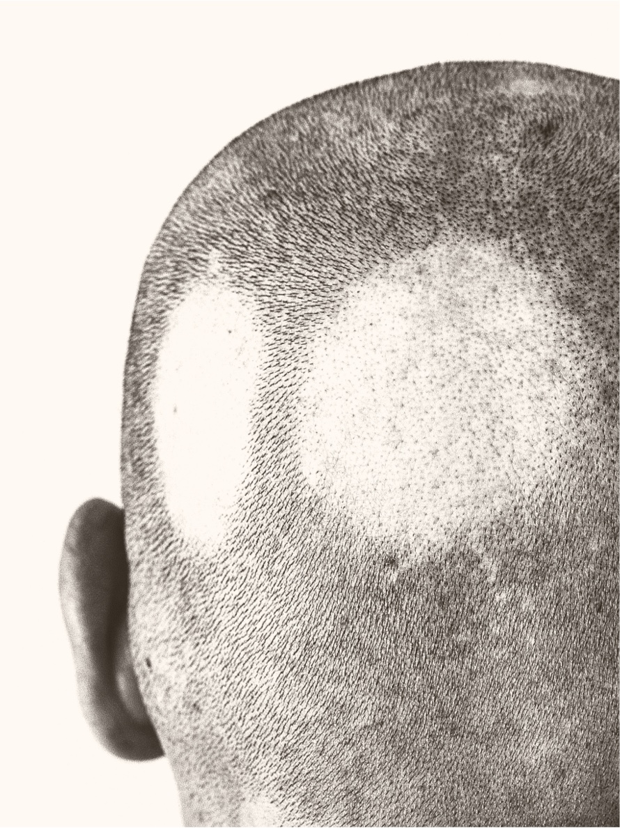 Patient with alopecia areata, or bald patches on the back of the scalp