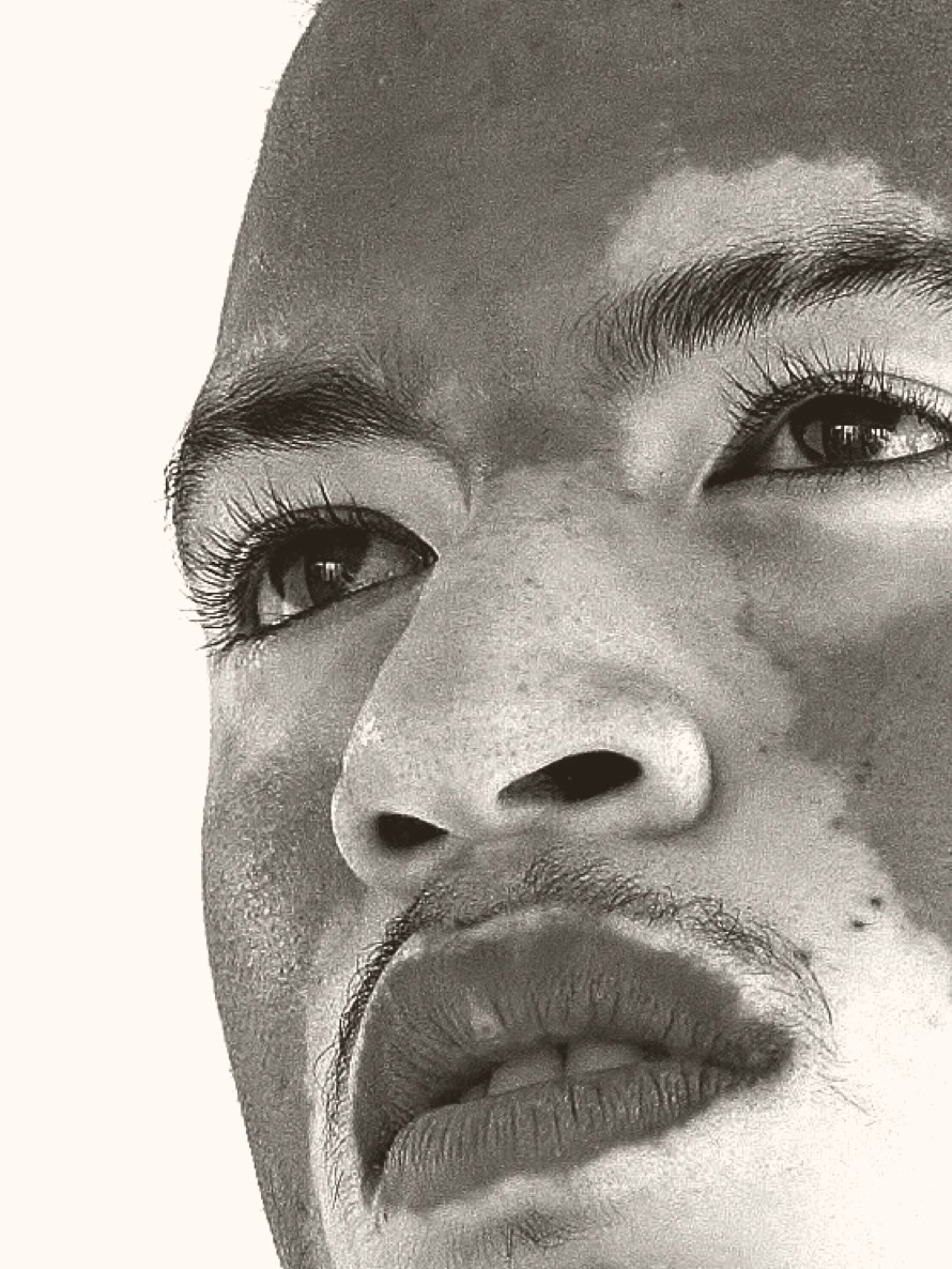 Man with vitiligo on face looking off into distance