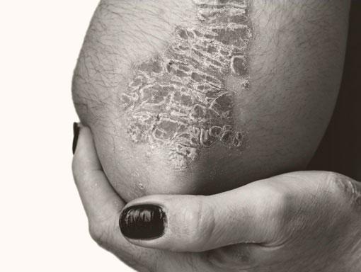Patient with plaque psoriasis on bent elbow