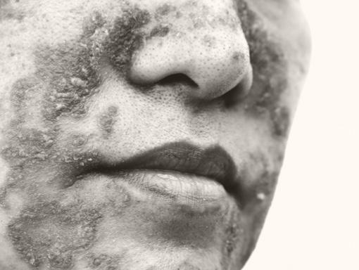 Patient with seborrheic dermatitis on face