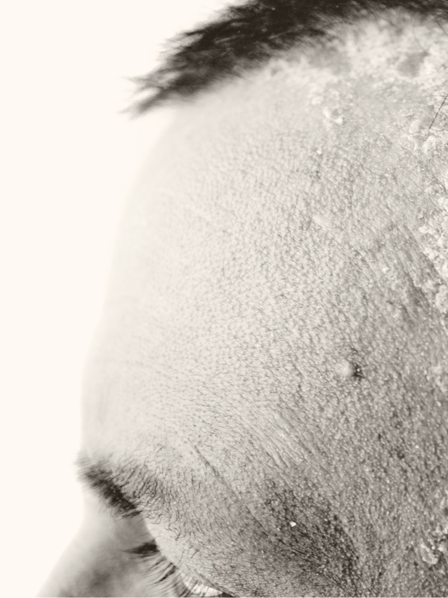 Man with scalp psoriasis at hairline