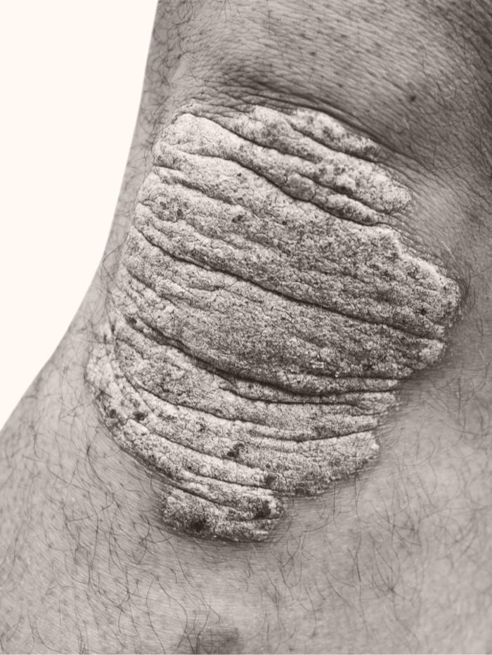 Patient with plaque psoriasis on knee