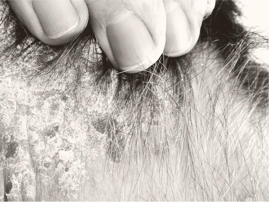 Patient with seborrheic dermatitis on hairline