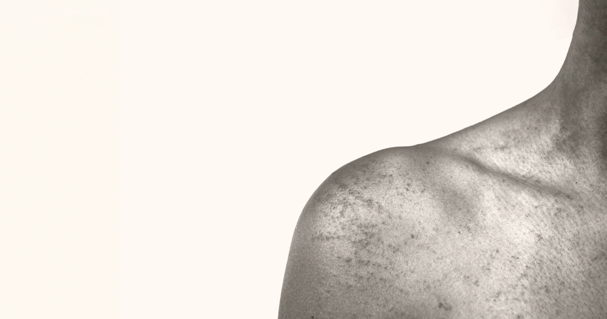 Patient with atopic dermatitis on their bare shoulder