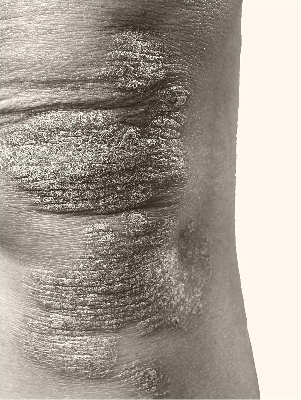 Patient with plaque psoriasis on knees