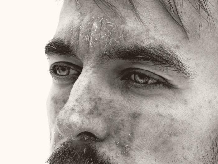Man with seborrheic dermatitis on forehead